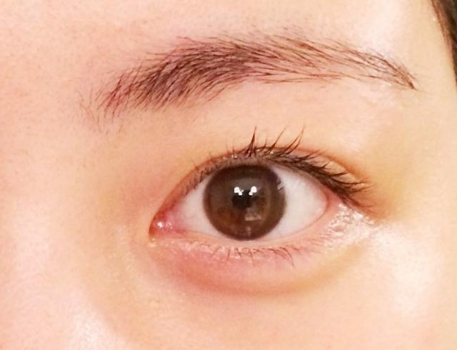 バセドウ病眼症